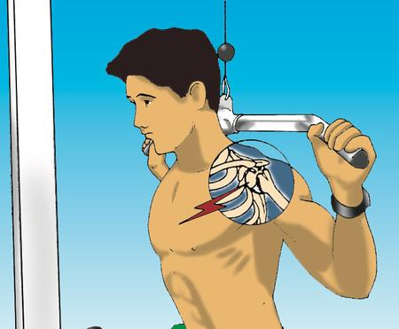 10 Lifting Tips to Prevent Shoulder Injuries Part 2