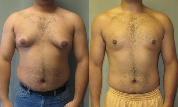 Tips for Healing Gynecomastia